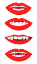 Braces set of mouth illustrations with on Stock Images
