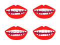 Braces vector set of isolated and mouths illustration before and after Royalty Free Stock Photos