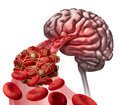 Brain blood clot medical concept as d illustration cells blocked by an artery blockage thrombus causing a blockage of Stock Photos