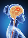 Brain cancer d rendered illustration Stock Photo