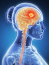 Brain cancer d rendered illustration Stock Image