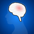 Brain injuries on a blue background illustration Stock Images