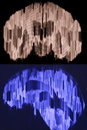 Brain mri scan of reconstruction in different planes Royalty Free Stock Photography
