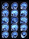 Brain Scan Stock Photos