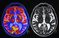 Brain scan on the left side is fused pet positron emission tomography and mri image pet represents metabolism of the and mri Royalty Free Stock Photos