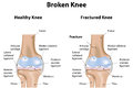 Broken knee fracture a joint with a break and high levels of detail Royalty Free Stock Photos