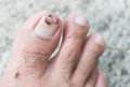 Broken toenail on cement background Royalty Free Stock Photo