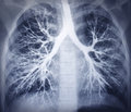 Bronchoscopy image. Chest X-ray. Healthy lungs Royalty Free Stock Photo