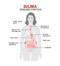 Bulimia. Signs and symptoms Royalty Free Stock Photo