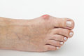 Bunion isolated background closeup of a hallux on foot Stock Photos