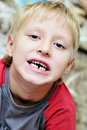 Bye bye first  milk tooth Royalty Free Stock Photography