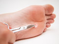 Callus under foot person with located treated with a pair of scissors Royalty Free Stock Photos