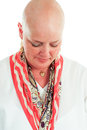 Cancer survivor hair loss has lost her as a result of chemotherapy white background Stock Photos