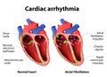 Cardiac arrhythmia Royalty Free Stock Photo