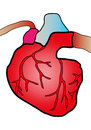 Cardiac system illustration of a heart cut in cardiovascular surgery Royalty Free Stock Photography