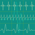 Cardiogram Royalty Free Stock Image