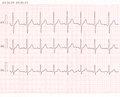 Cardiogram ecg shows heart beat Royalty Free Stock Photos