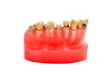 Caries Royalty Free Stock Photos