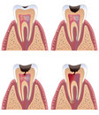 Caries stages Stock Image