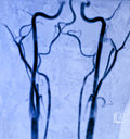 Carotid Magnetic Resonance Angiography Royalty Free Stock Photos