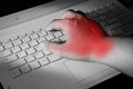Carpal tunnel syndrome wrist pain from working with computer Royalty Free Stock Photo