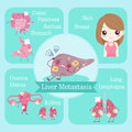 Cartoon liver metastasis