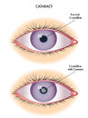 Cataract medical illustration of the effects of Royalty Free Stock Photography