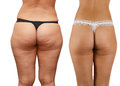 Cellulite buttocks Royalty Free Stock Images