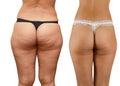 Cellulite buttocks Royalty Free Stock Photo