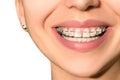Ceramic Dental Braces Teeth Fe...