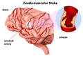 Cerebrovascular stroke illustration of the on a white background Stock Photo