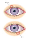 Chalazion sty medical illustration of symptoms of and Stock Photo