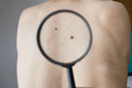 Checking melanoma on the back of a man Royalty Free Stock Photo
