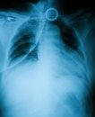 Chest X-ray image, AP view. Royalty Free Stock Photo