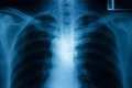 Chest x ray image healthy Stock Photo