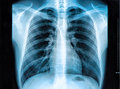Chest X-ray Image Royalty Free Stock Photo
