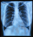 Chest x ray image if the human Royalty Free Stock Photo
