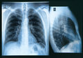 Chest x ray image if the human Stock Photo