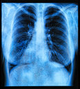 Chest x ray image if the human Royalty Free Stock Photos