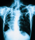 Chest X-ray image, PA upright view. Royalty Free Stock Photo
