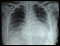 Chest x ray of the patient after surgery Royalty Free Stock Photography