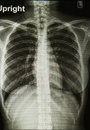 Chest X-rays image Stock Image