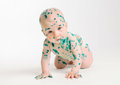 Chicken pox ailing infant on white background Stock Photos