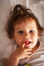 Chicken pox cute caucasian baby with laying on bed Royalty Free Stock Photography