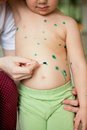 Chickenpox in children Stock Photography