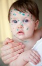 Chickenpox in children Royalty Free Stock Images