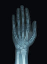 Child Hand X-Ray Unclosed Epiphysis Royalty Free Stock Photo