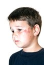Photo : Child with a scraped face provocative