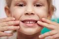 Child showing teeth