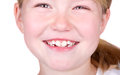 Child smiling close up of mouth Stock Photo